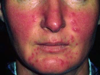 Introduction of Acne Rosacea