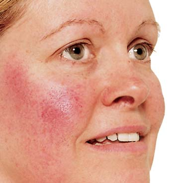 Tests & Diagnosis for Acne Rosacea