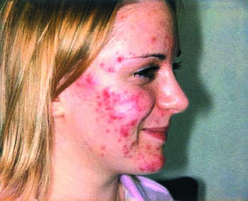 Causes of Acne vulgaris