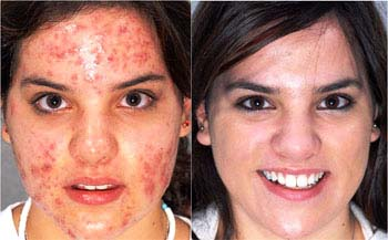 Homeopathic treatment for Acne Vulgaris