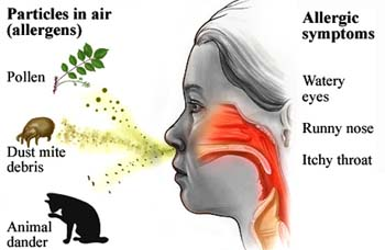 Causes of Allergic Rhinitis