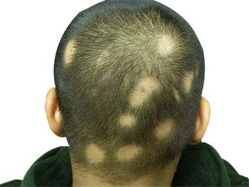 the hair loss disease alopecia areata essay Medical conditions that can cause hair loss include thyroid disease, alopecia areata (an autoimmune disease that attacks hair follicles), and scalp infections like ringworm.
