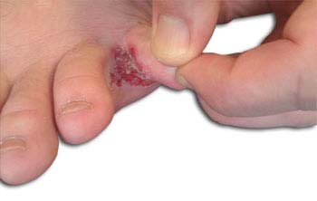 Definition of Athlete's Foot