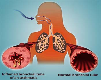 bronchial asthma definition medical dictionary