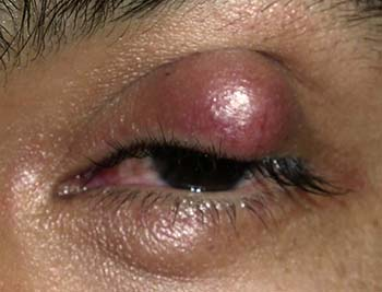 Chalazion Symptoms, Causes, & Homeopathic Treatments