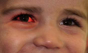 conjunctivitis_Introduction