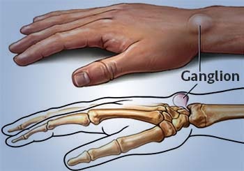 ganglion cyst categorization
