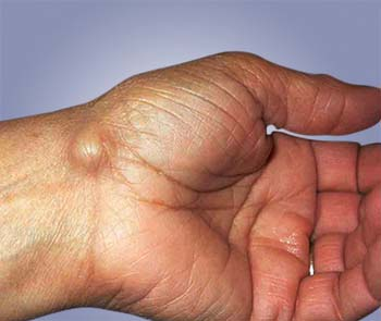 ganglion cyst introduction - welcomecure, Skeleton