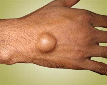 ganglion cyst - welcomecure, Skeleton