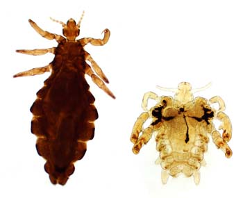 Introduction of Head Lice