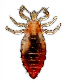 Summary of Head Lice