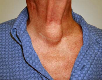 Similar Conditions of Hypothyroidism
