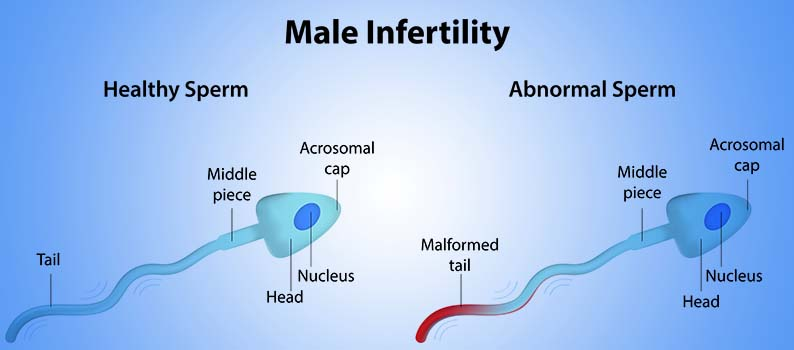 male infertility introduction
