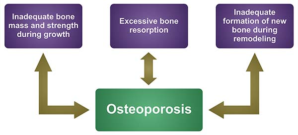 Osteoporosis_Introduction