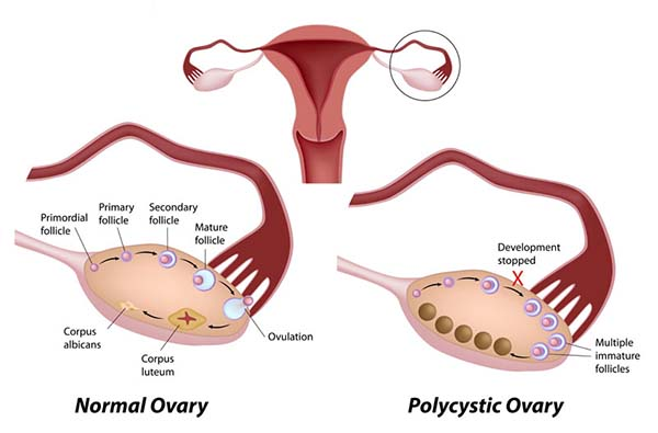 Polycystic Ovary Syndrome (PCOS) Defination