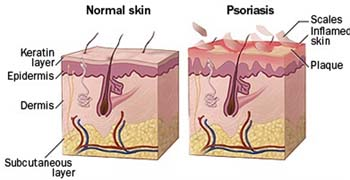 Summary of Psoriasis