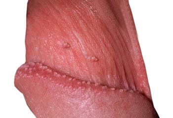 Symptoms of anal warts