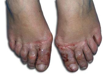 Similar Conditions of Athlete's Foot