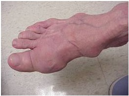 Summary of Gout