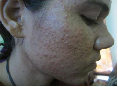 Before Treatment of Eczema